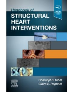Handbook of Structural Heart Interventions