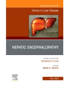 Drug Hepatotoxicity An Issue of Clinics in Liver Disease