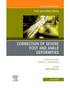 Correction of Severe Foot and Ankle Deformities  An issue of Foot and Ankle Clinics of North America